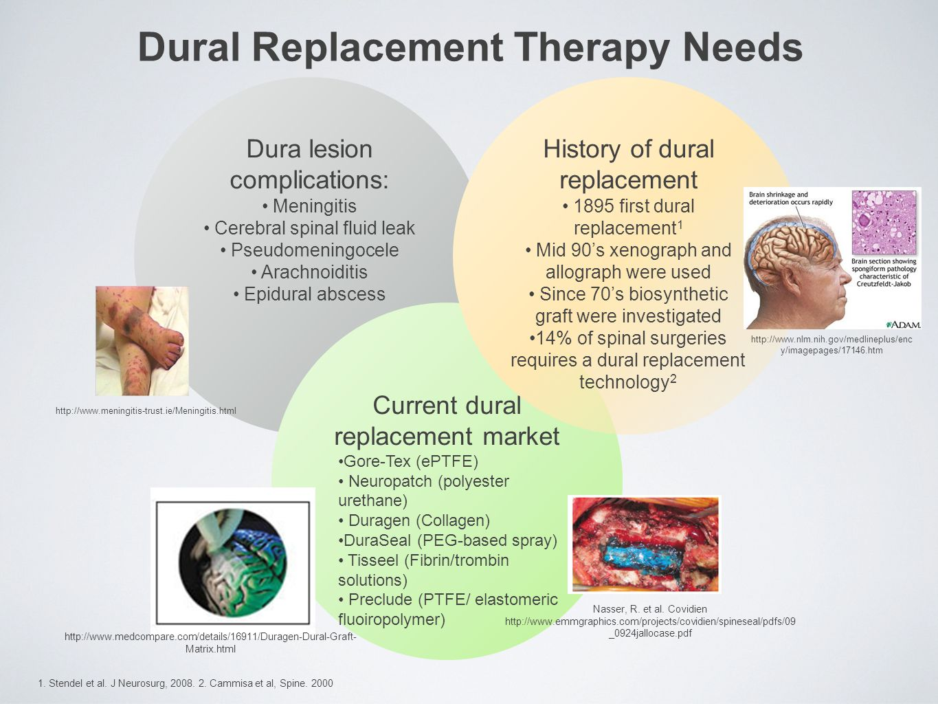 Dural Replacement Therapy Needs