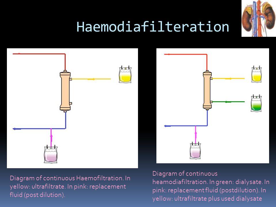 Haemodiafilteration