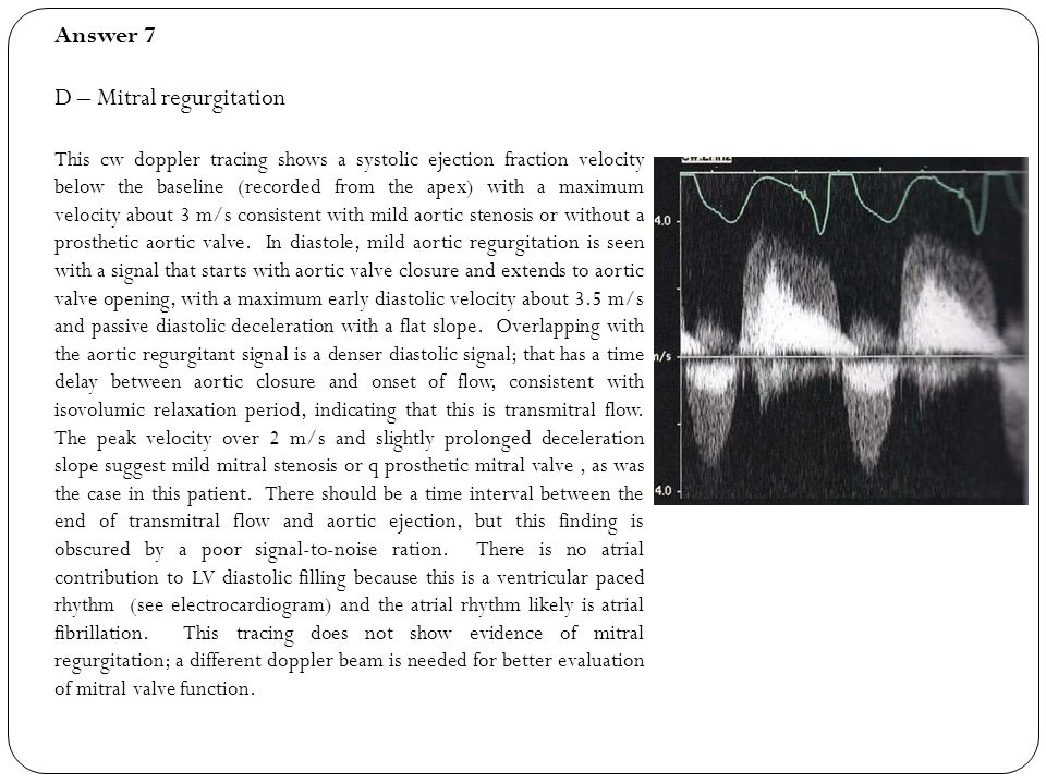D – Mitral regurgitation