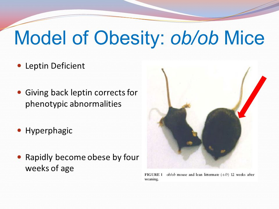 Model of Obesity: ob/ob Mice
