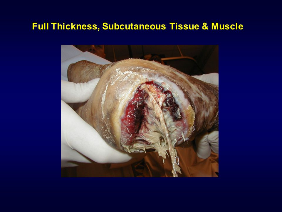 Full Thickness, Subcutaneous Tissue & Muscle