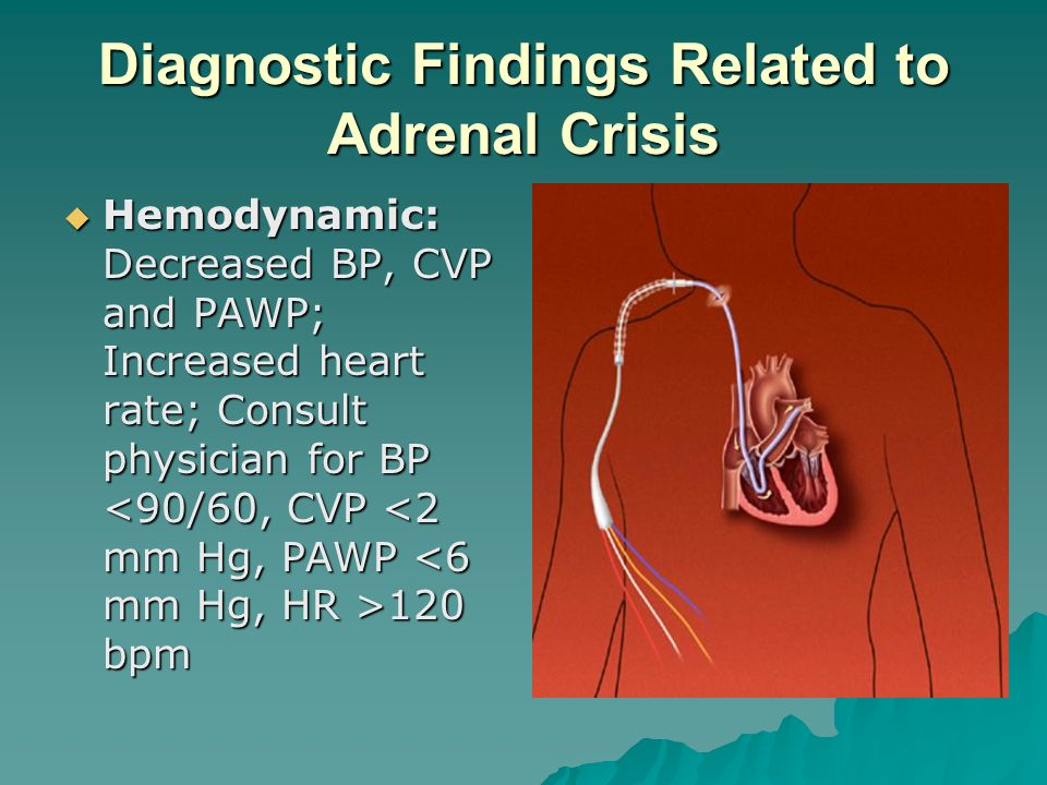 Diagnostic Findings Related to Adrenal Crisis