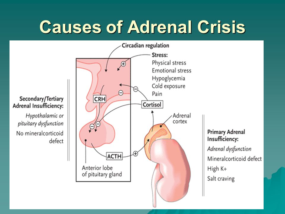 Causes of Adrenal Crisis