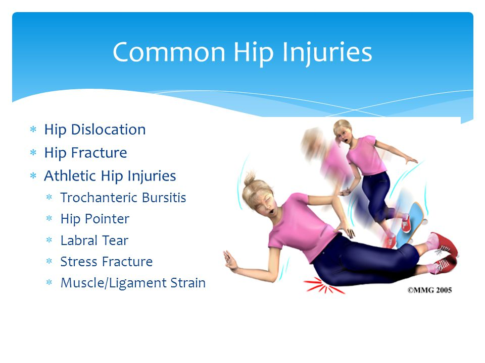 Common Hip Injuries Hip Dislocation Hip Fracture Athletic Hip Injuries