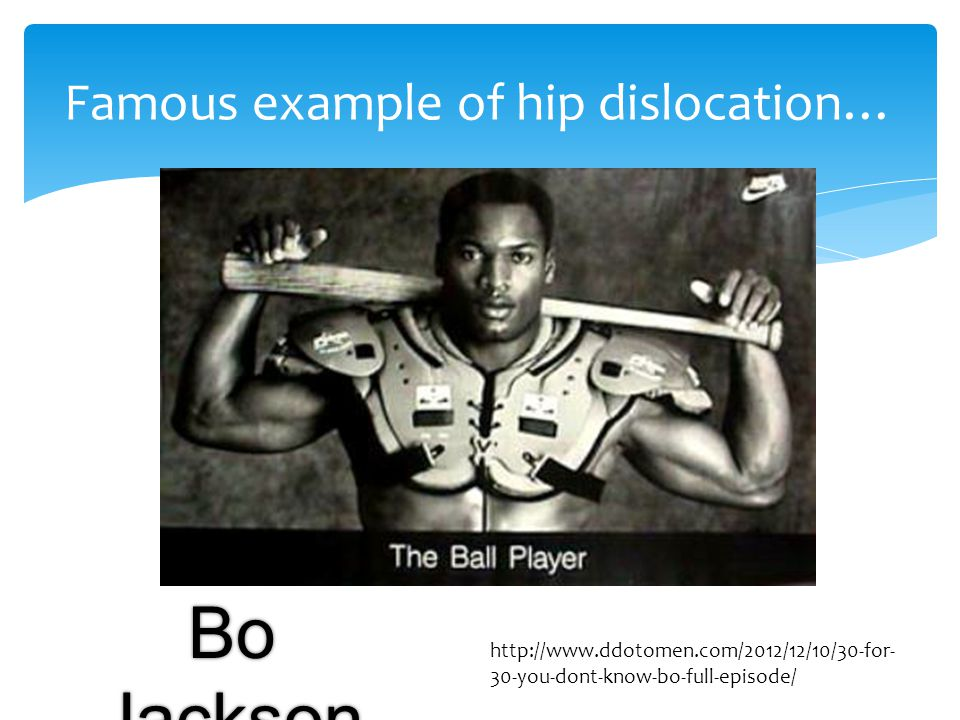 Famous example of hip dislocation…