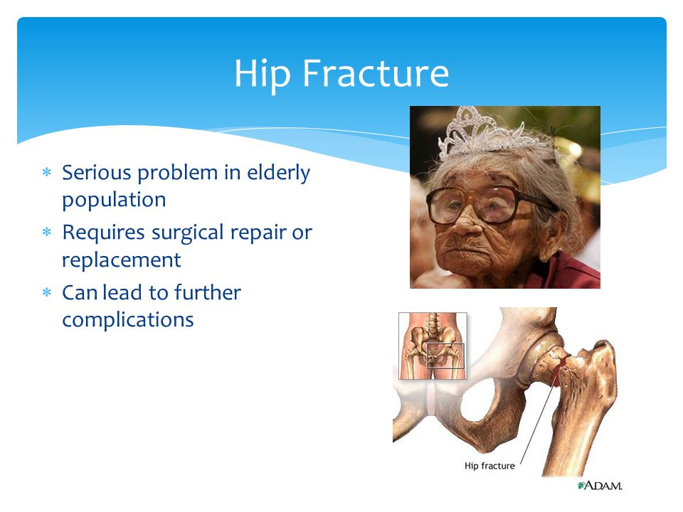 Hip Fracture Serious problem in elderly population
