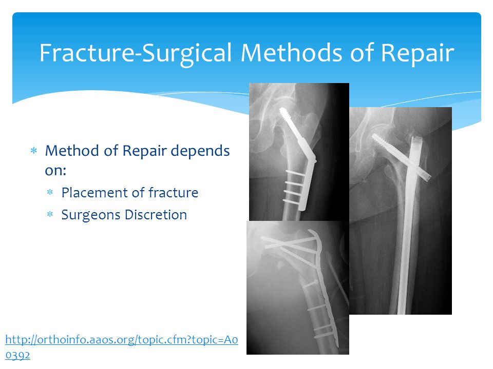 Fracture-Surgical Methods of Repair