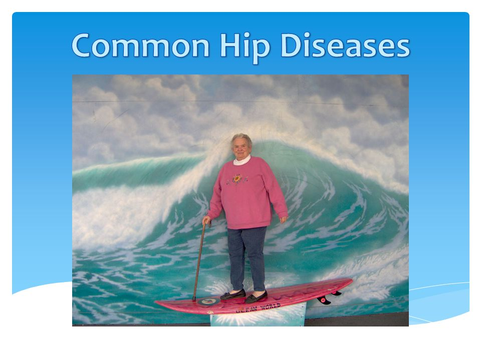 Common Hip Diseases