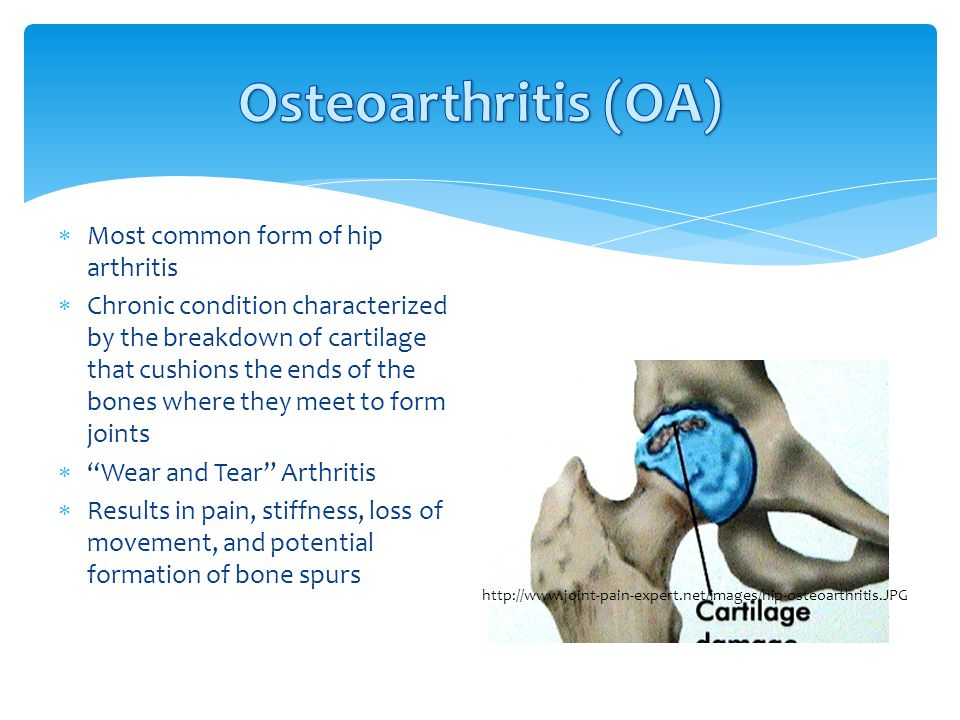 Osteoarthritis (OA) Most common form of hip arthritis