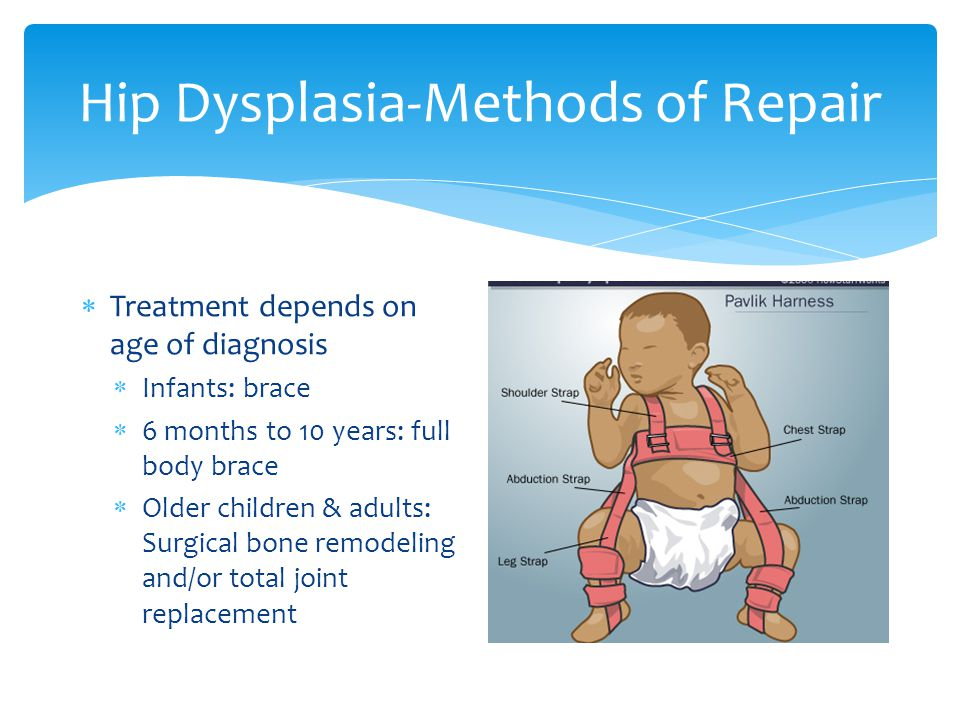 Hip Dysplasia-Methods of Repair
