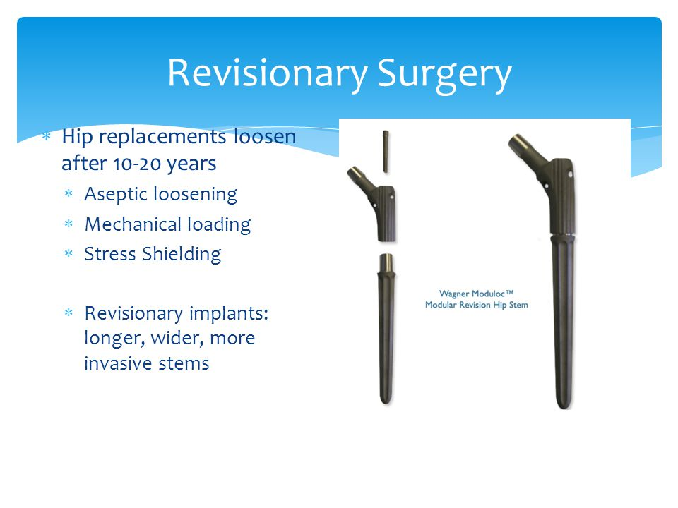 Revisionary Surgery Hip replacements loosen after 10-20 years