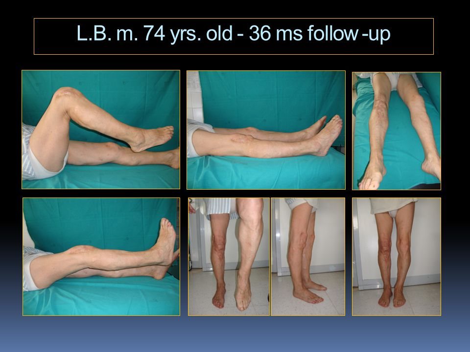 L.B. m. 74 yrs. old - 36 ms follow -up