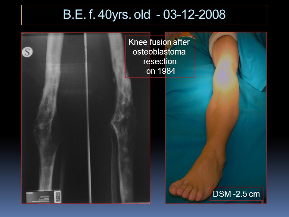 B.E. f. 40yrs. old - 03-12-2008 Knee fusion after osteoblastoma