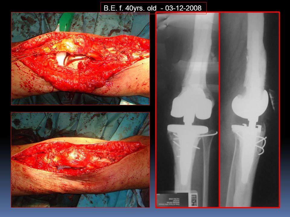 B.E. f. 40yrs. old - 03-12-2008