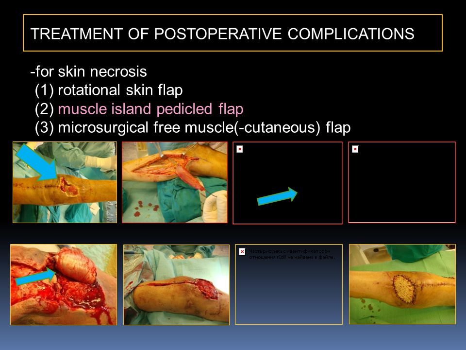 TREATMENT OF POSTOPERATIVE COMPLICATIONS