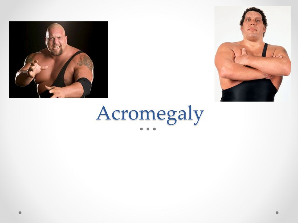 Acromegaly Bonus points, can you name these wrestlers