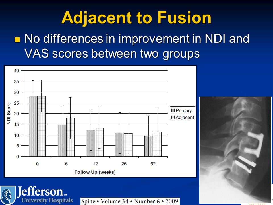 Adjacent to Fusion No differences in improvement in NDI and VAS scores between two groups
