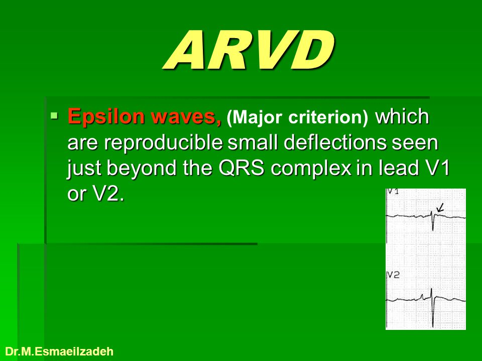 ARVD Epsilon waves, (Major criterion) which are reproducible small deflections seen just beyond the QRS complex in lead V1 or V2.
