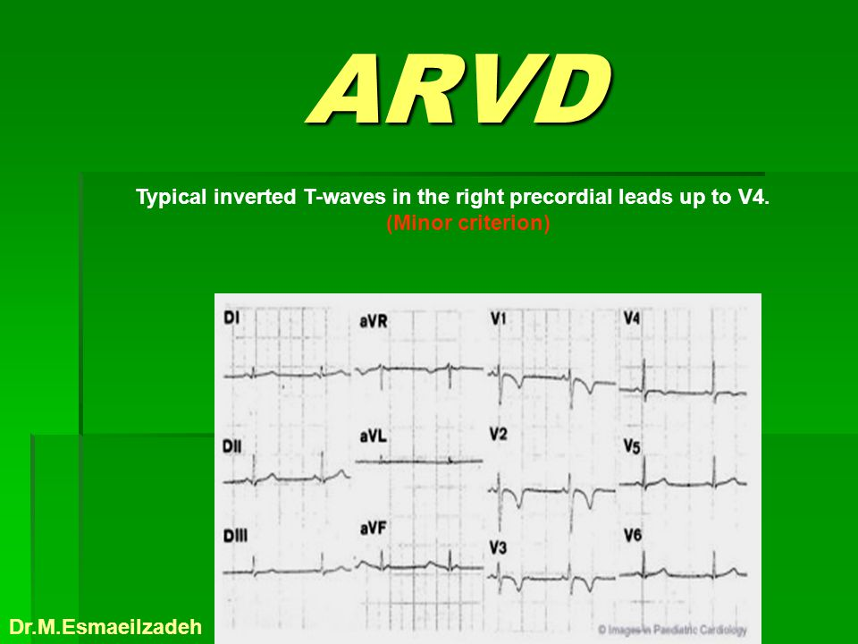 ARVD Typical inverted T-waves in the right precordial leads up to V4.