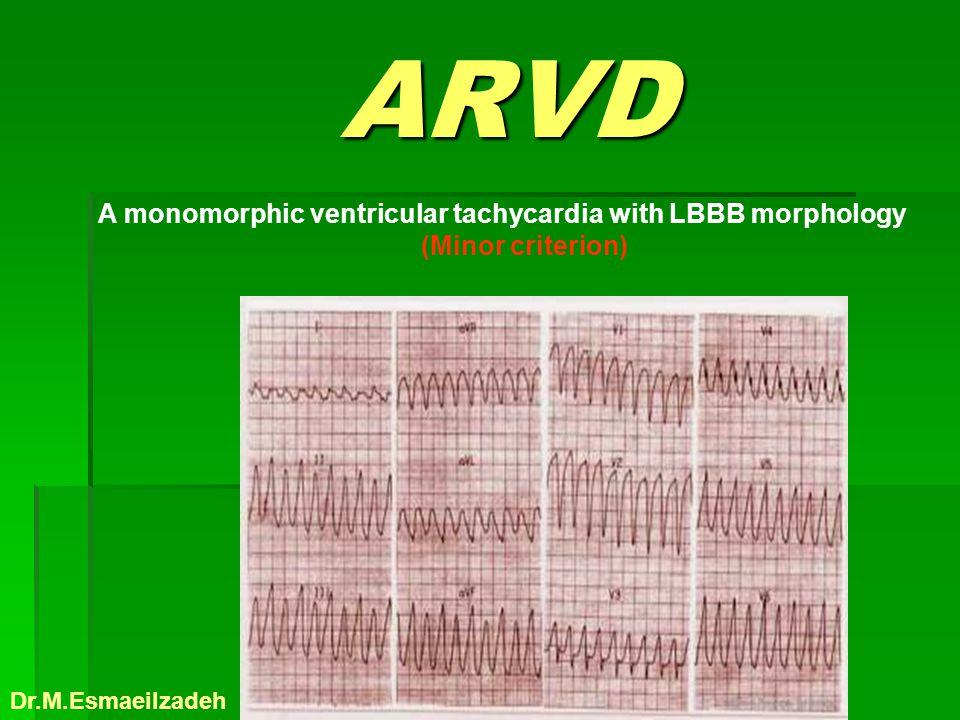 ARVD A monomorphic ventricular tachycardia with LBBB morphology