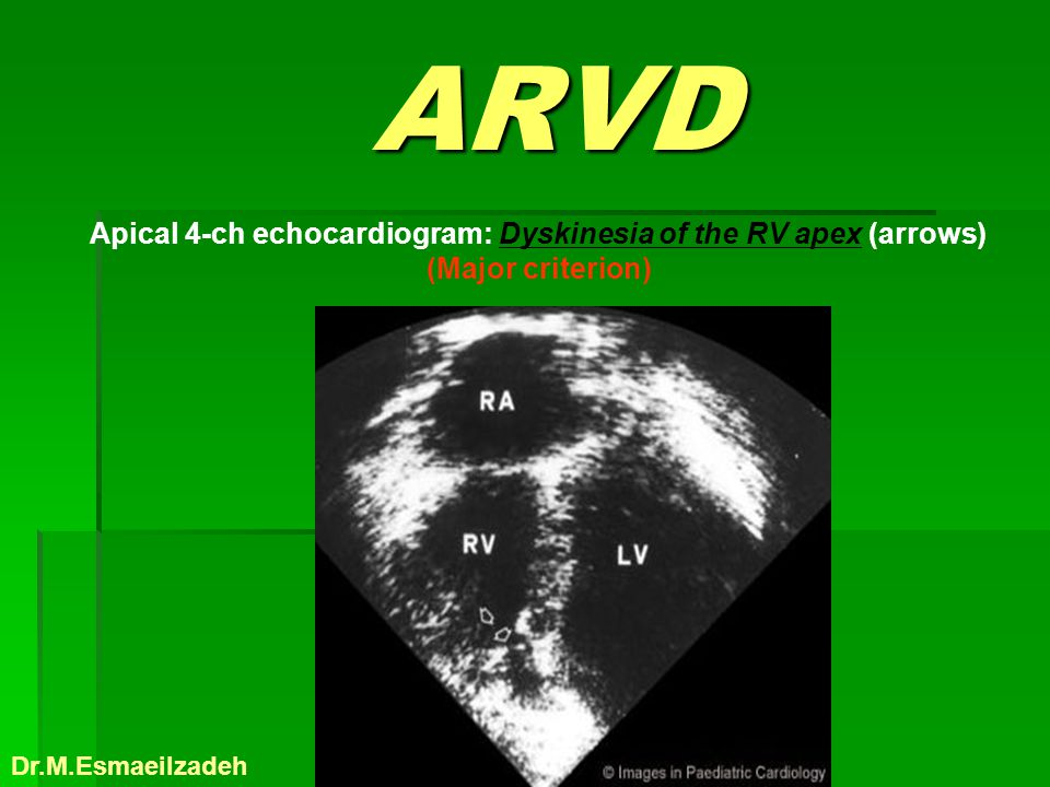 Apical 4-ch echocardiogram: Dyskinesia of the RV apex (arrows)