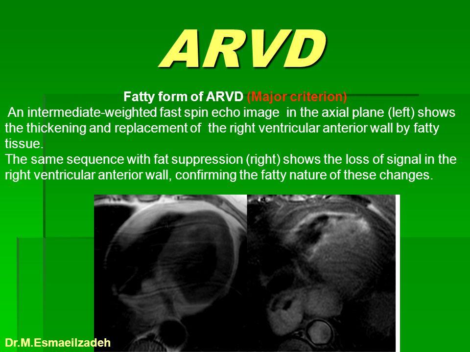 Fatty form of ARVD (Major criterion)