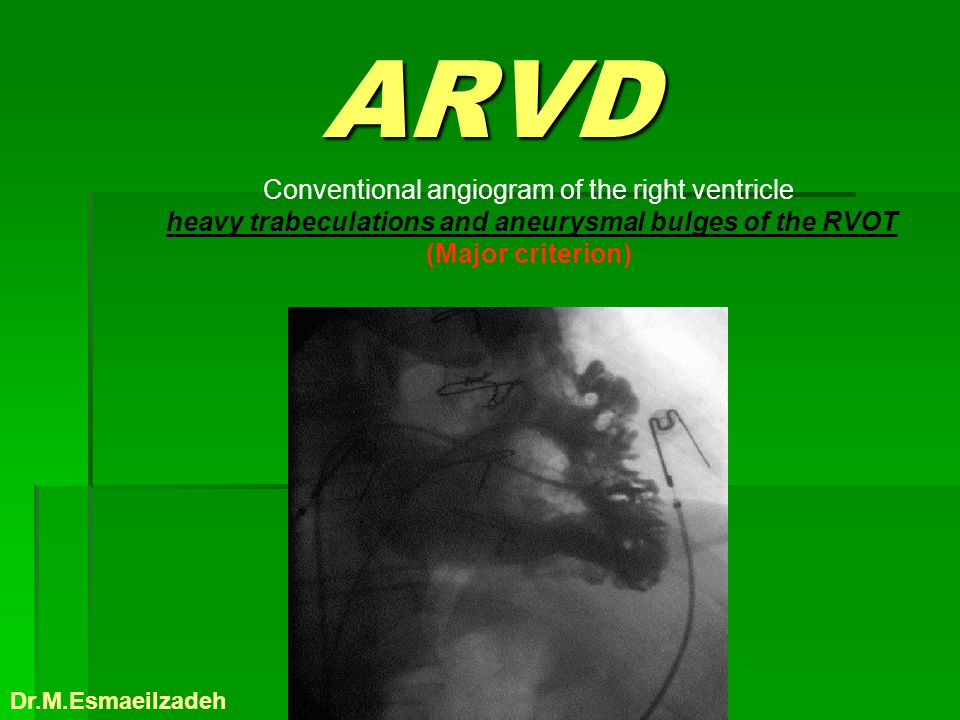 heavy trabeculations and aneurysmal bulges of the RVOT