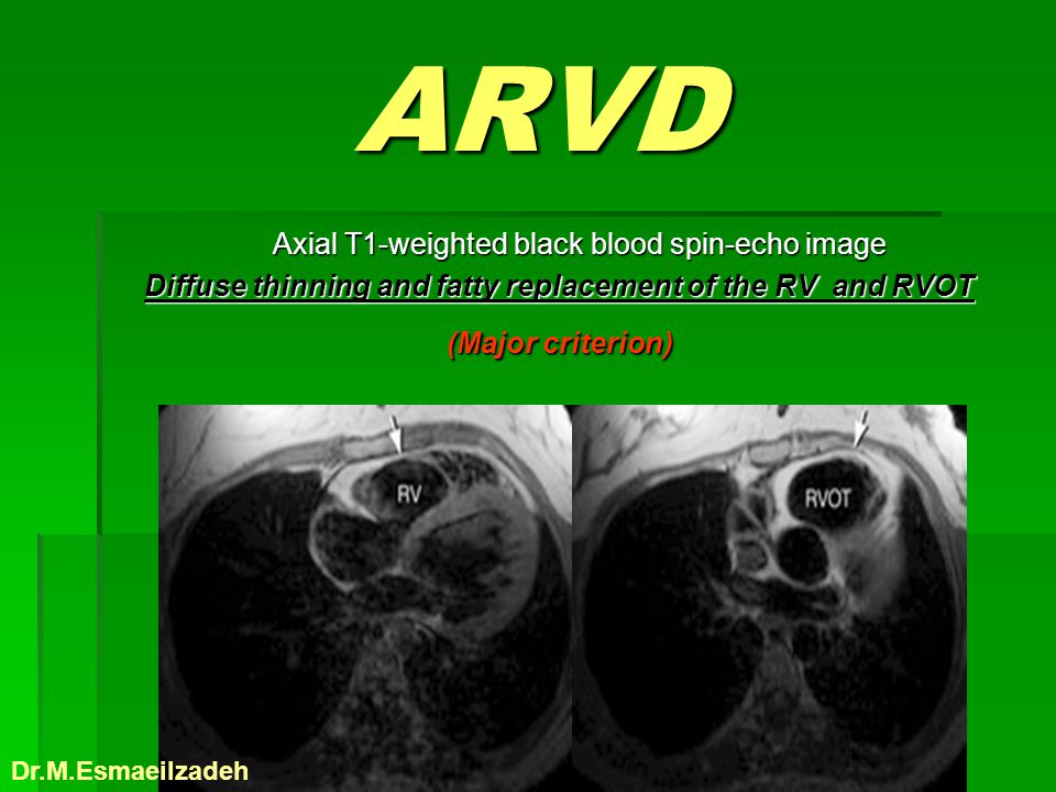 ARVD Axial T1-weighted black blood spin-echo image