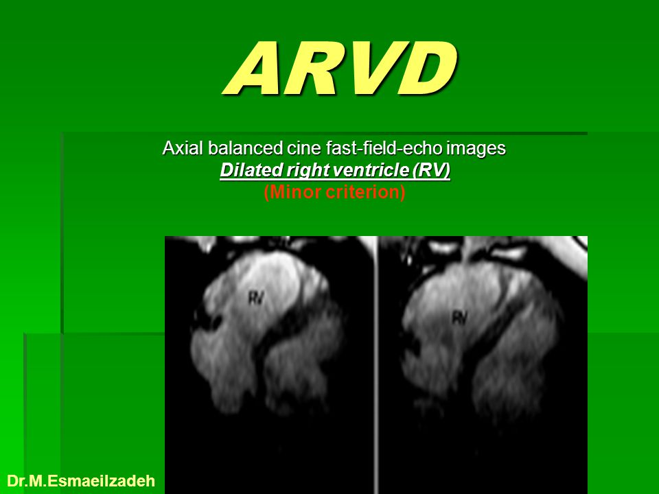 ARVD Axial balanced cine fast-field-echo images