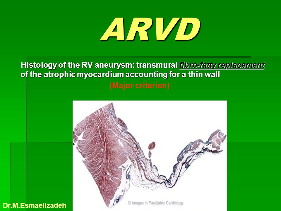 ARVD Histology of the RV aneurysm: transmural fibro-fatty replacement of the atrophic myocardium accounting for a thin wall.