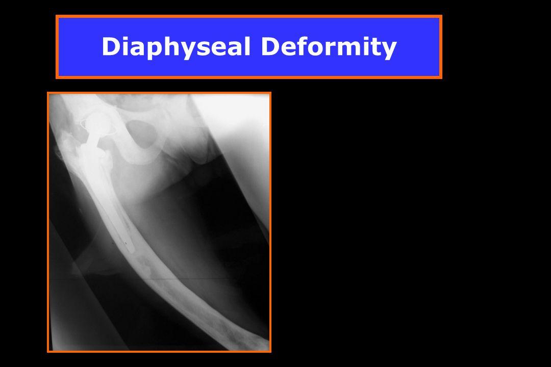 Diaphyseal Deformity