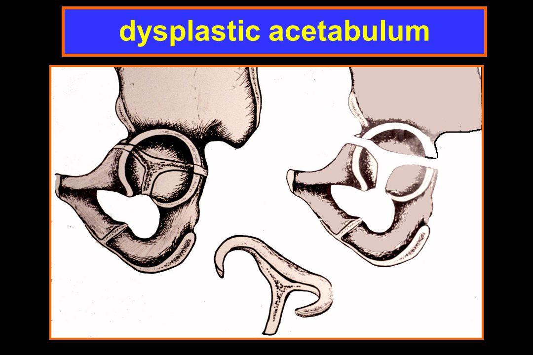 dysplastic acetabulum