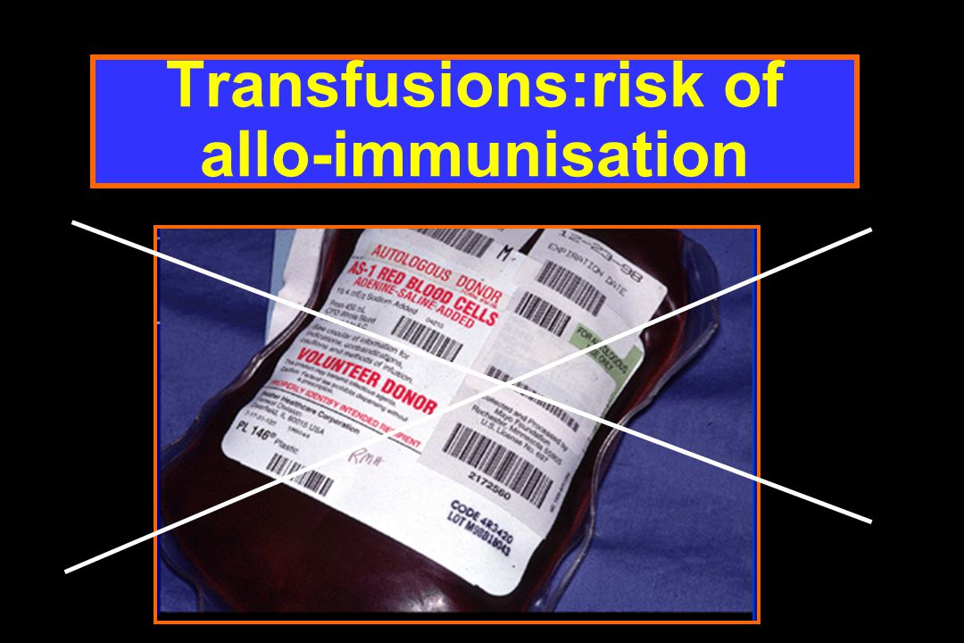Transfusions:risk of allo-immunisation