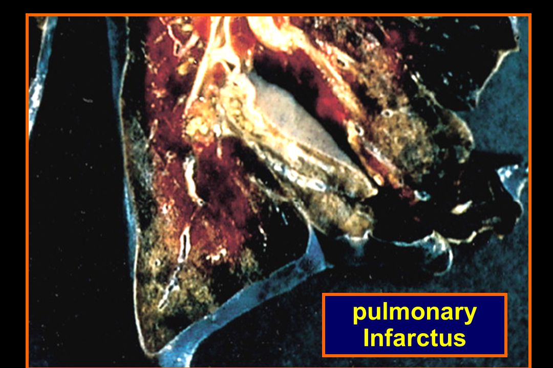pulmonary Infarctus