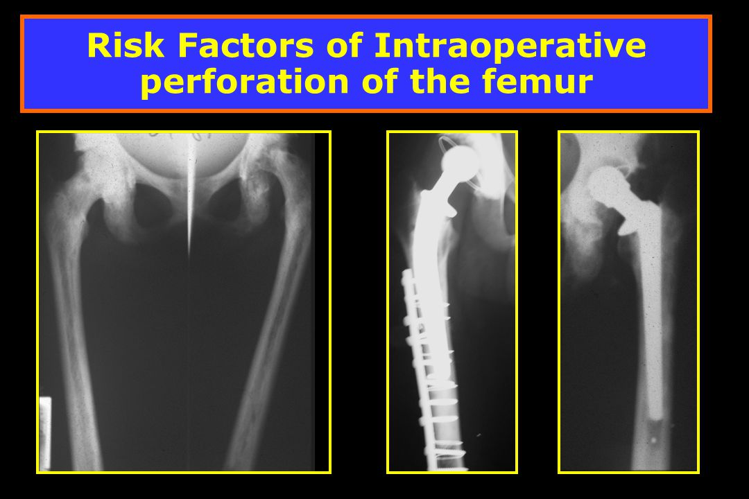 Risk Factors of Intraoperative perforation of the femur