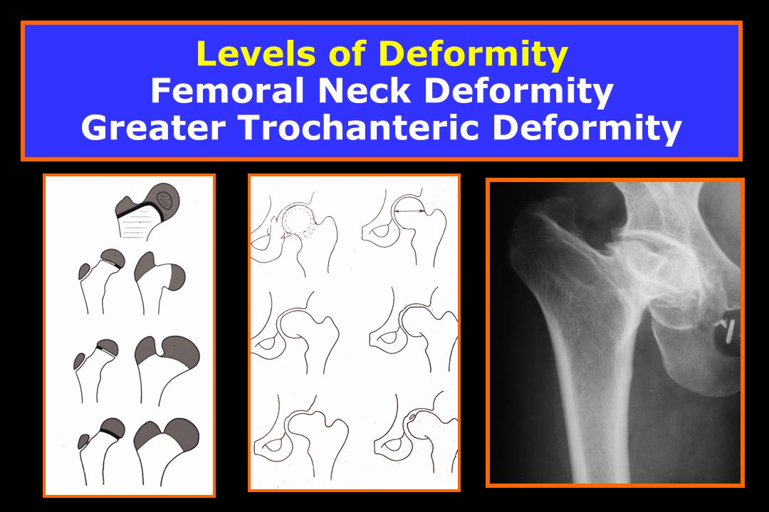 Levels of Deformity Femoral Neck Deformity Greater Trochanteric Deformity