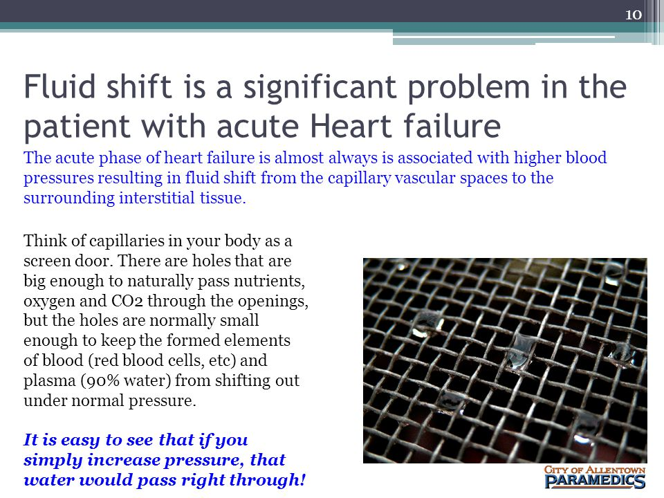 Fluid shift is a significant problem in the patient with acute Heart failure