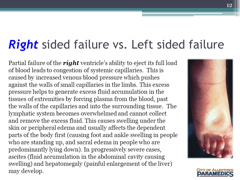 Right sided failure vs. Left sided failure