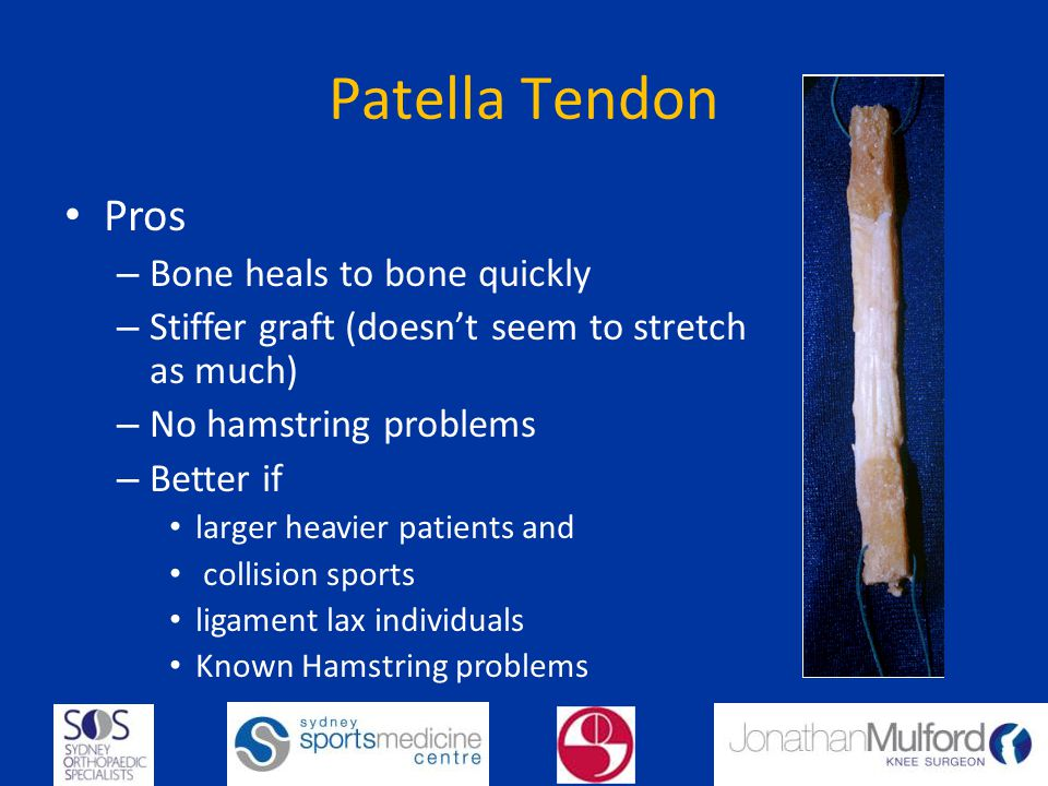 Patella Tendon Pros Bone heals to bone quickly