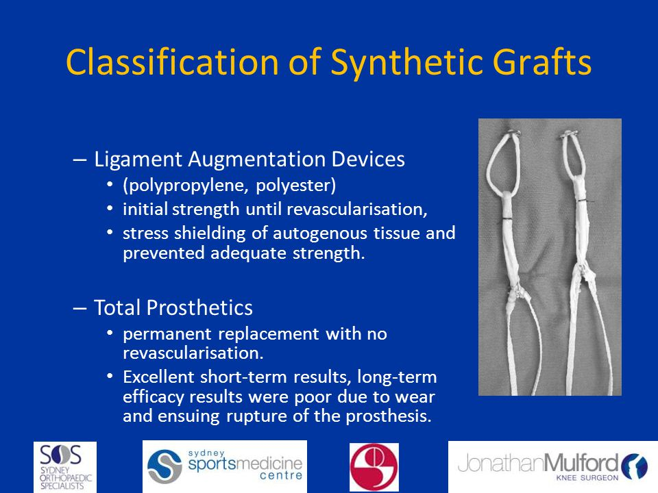 Classification of Synthetic Grafts