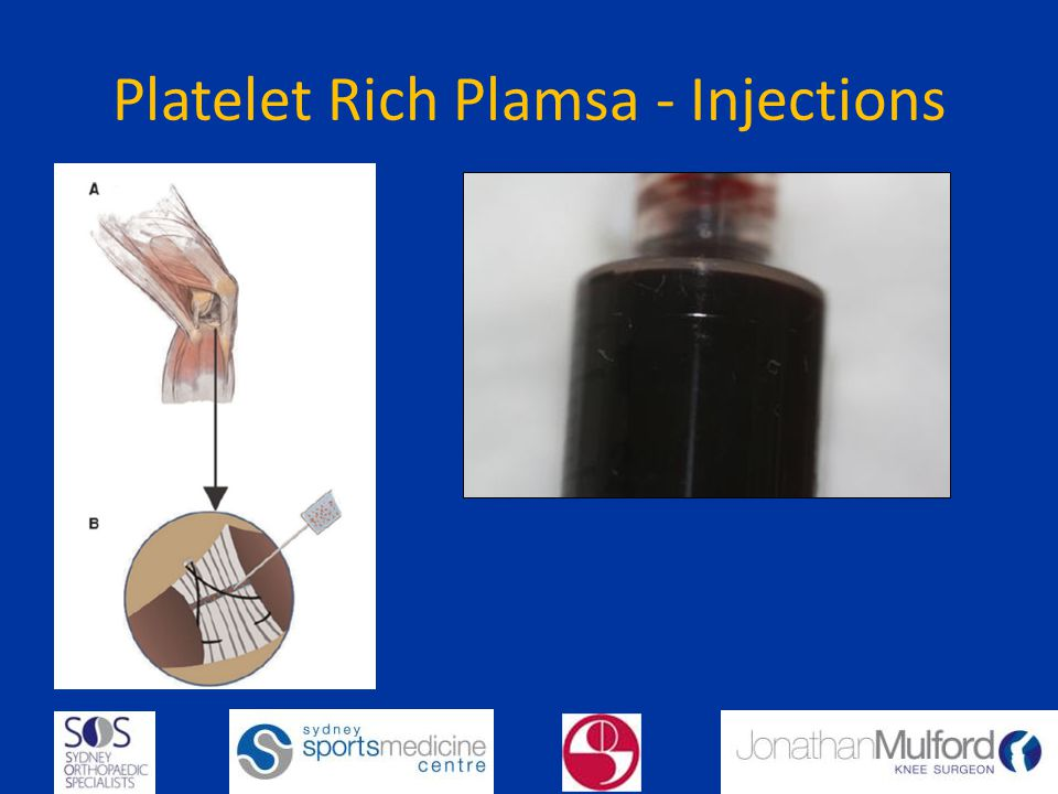 Platelet Rich Plamsa - Injections