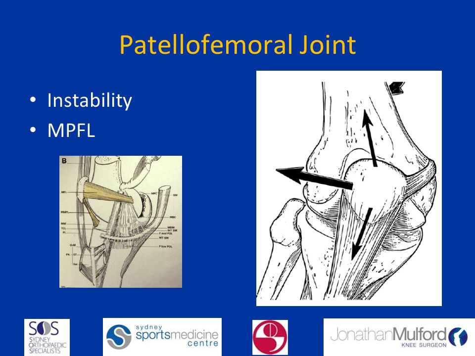 Patellofemoral Joint Instability MPFL