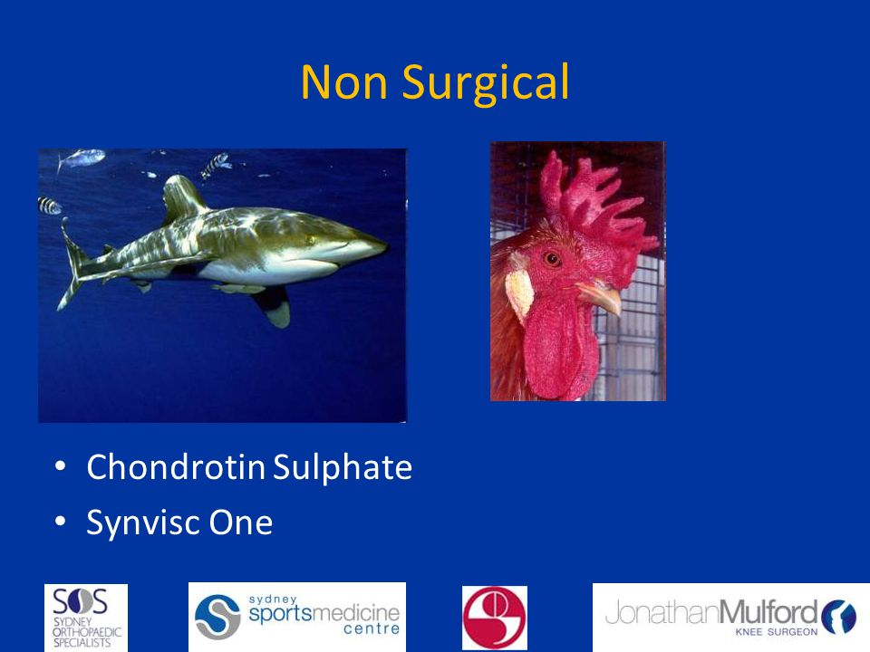Non Surgical Chondrotin Sulphate Synvisc One