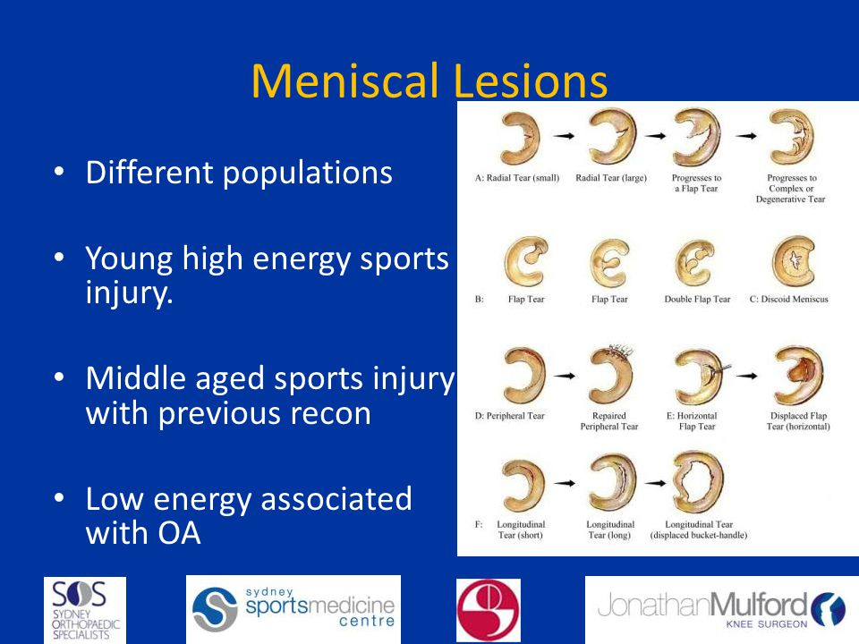 Meniscal Lesions Different populations