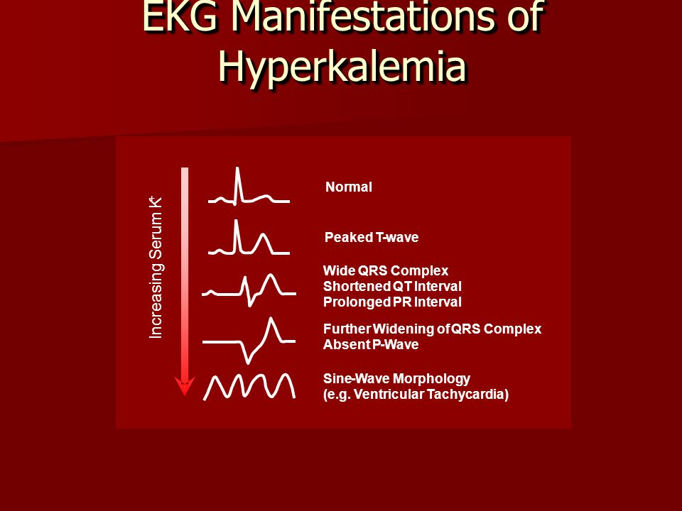 EKG Manifestations of Hyperkalemia