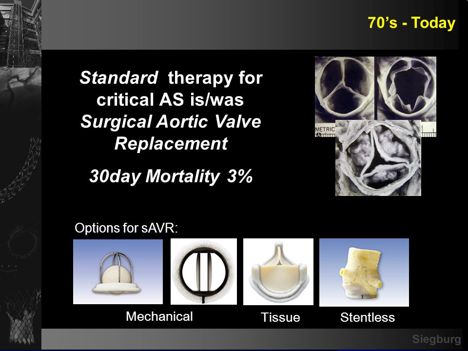 Outcome of AVR in High Risk Patients with severe AS