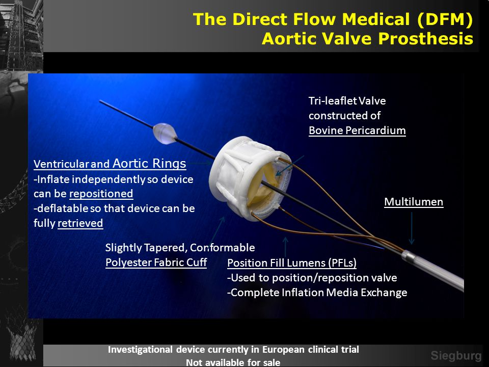 Direct Flow Aortic Valve