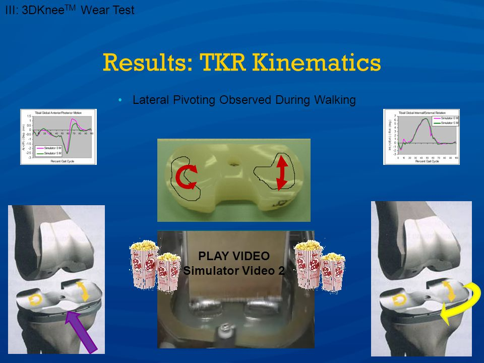 Results: TKR Kinematics