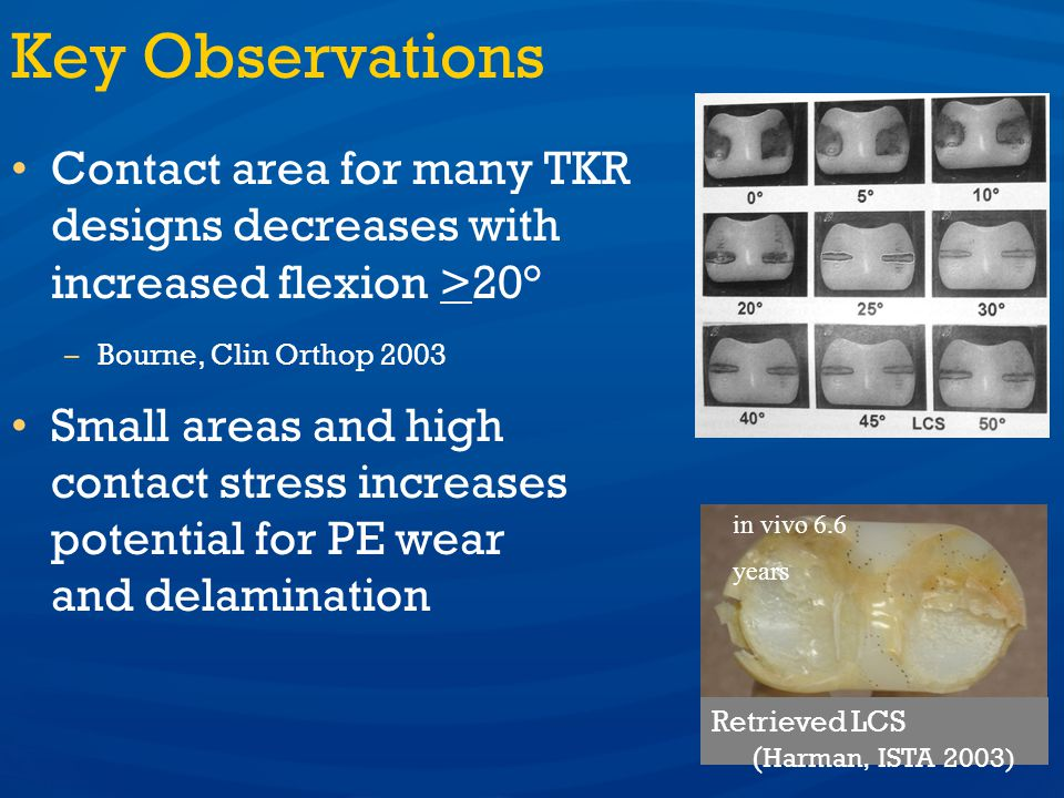 Melinda K. Harman, PhD Key Observations. Contact area for many TKR designs decreases with increased flexion >20°