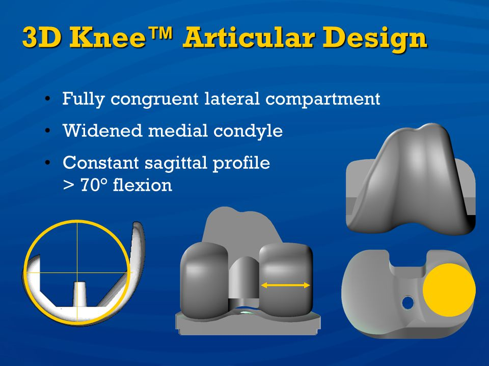 3D Knee™ Articular Design